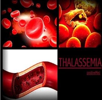 Baba Ramdev Medicine For Thalassemia-FineYog Com