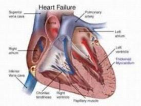 Baba Ramdev Medicine For Heart Disease