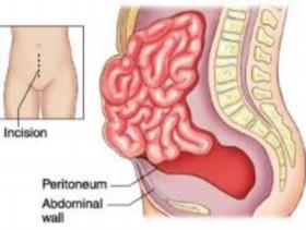 Baba Ramdev Medicine For Hernia