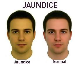 Baba Ramdev Medicine For Jaundice
