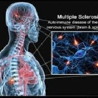 Baba Ramdev Medicine For Multiple Sclerosis