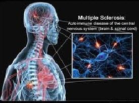 Baba Ramdev Medicine For Multiple Sclerosis