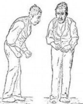 Baba Ramdev Medicine For Parkinson