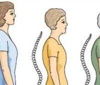 Baba ramdev medicine for osteoporosis