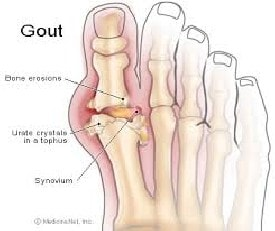 Gout Problem Complete Health Package